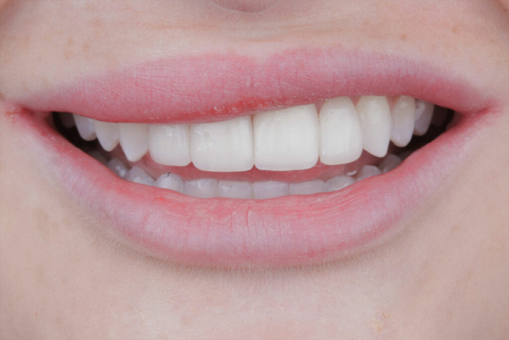 Dental work done by Major Dental Clinics Located in Chicago and Milwaukee