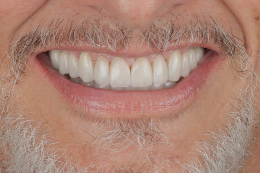 After Full Mouth Restoration