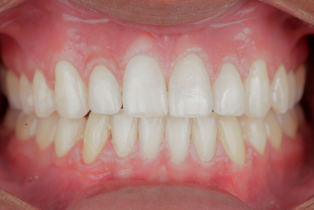Take good care of your teeth by getting them cleaned