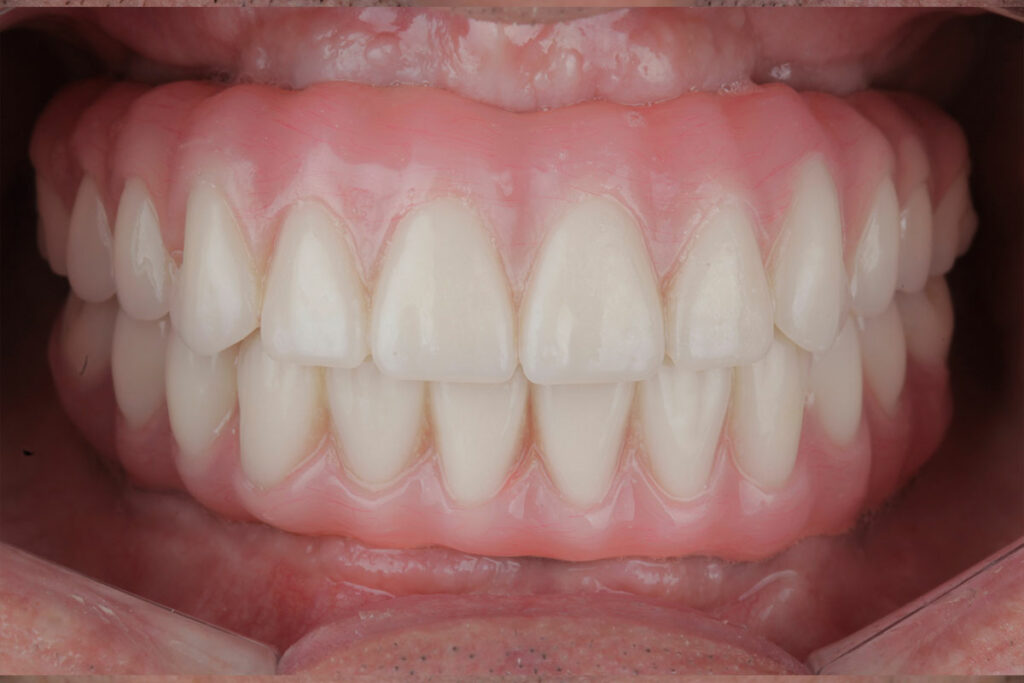 Find an implant solution that's right for you at Major Dental Clinic
