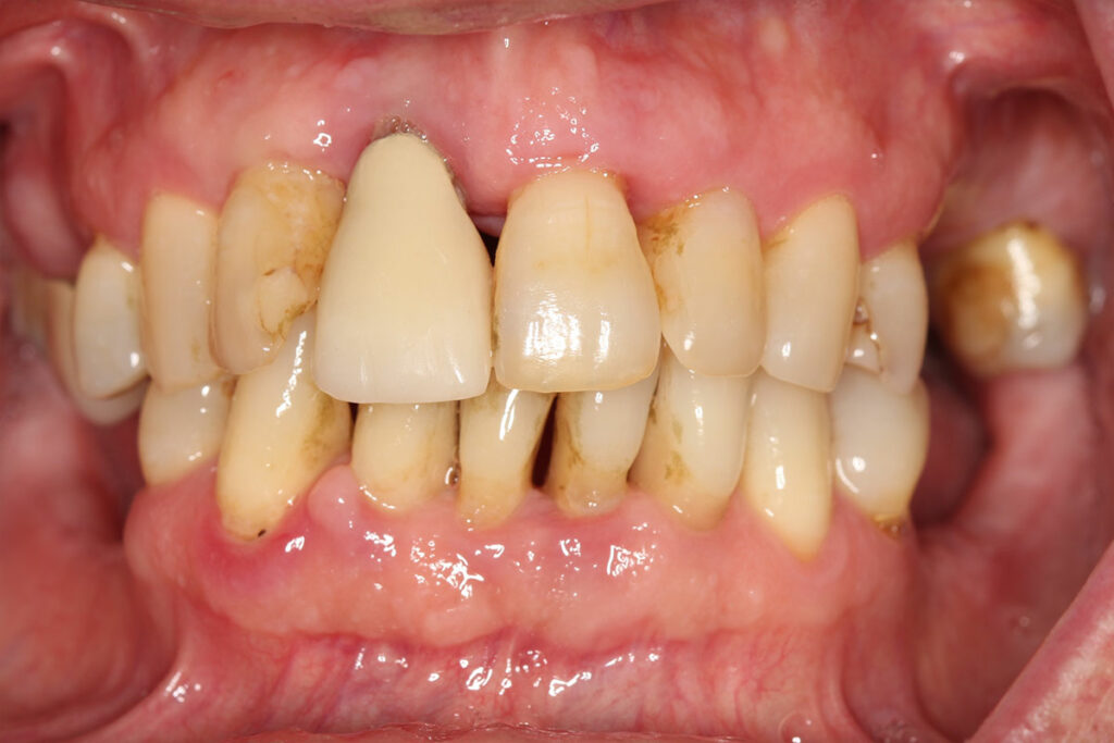 Find and Implant solution that's right for you at Major Dental Clinic