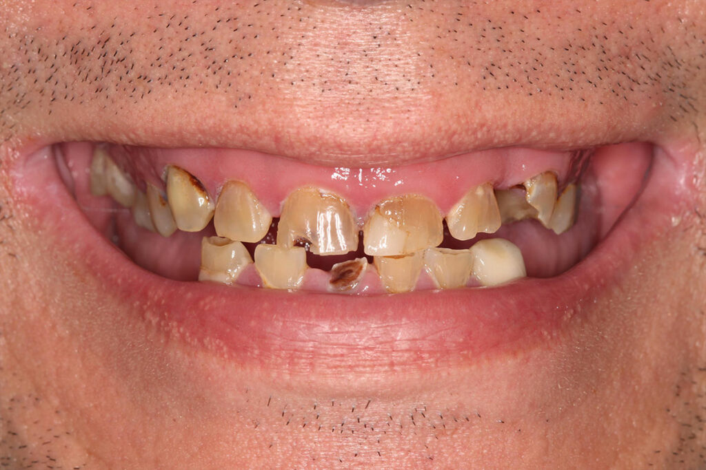 All-on-4™ Immediate Implant procedure available at Major Dental clinics