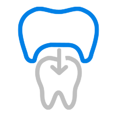 Crowns and Bridges at Major Dental Clinics located in IL and WI